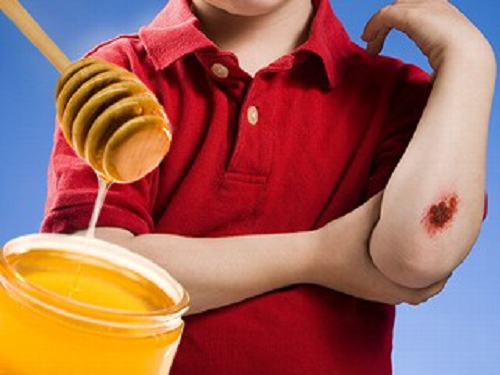 honey as a wound cleaner